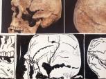 Heath Skulls